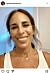 Alexandra Rapaport med fake-tänder