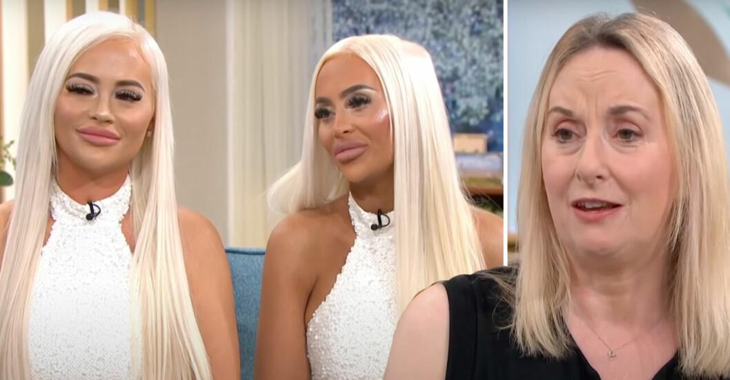 Tvillingsystrarna Daisy och Dolly har opererat sina utseenden flera gånger. Deras mamma Christina Simpson är skeptisk.