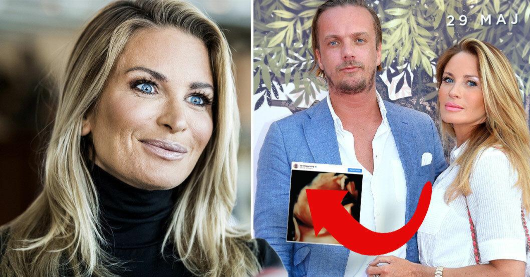 Carolina Gynning och Viktor Philipsons första bild på ofödda dottern