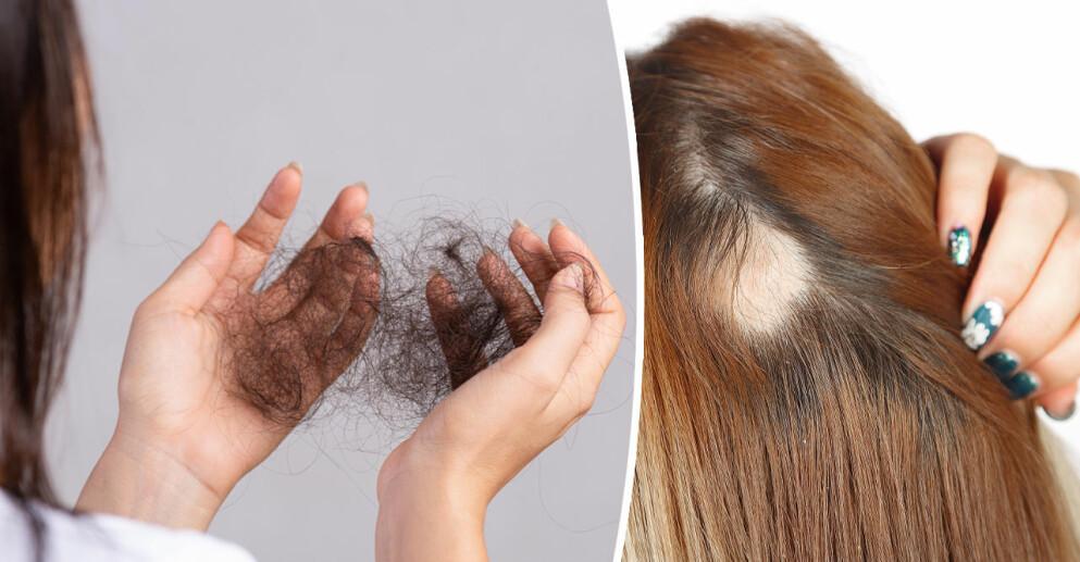 De flesta kvinnor drabbas någon gång av håravfall.