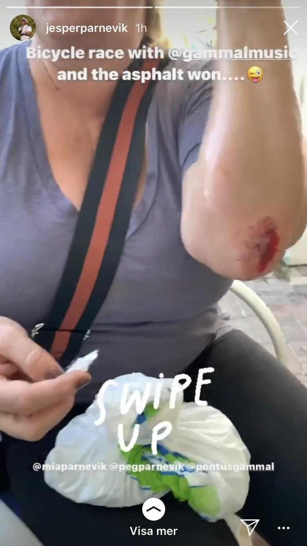 Mia Parnevik visar upp sina skador.