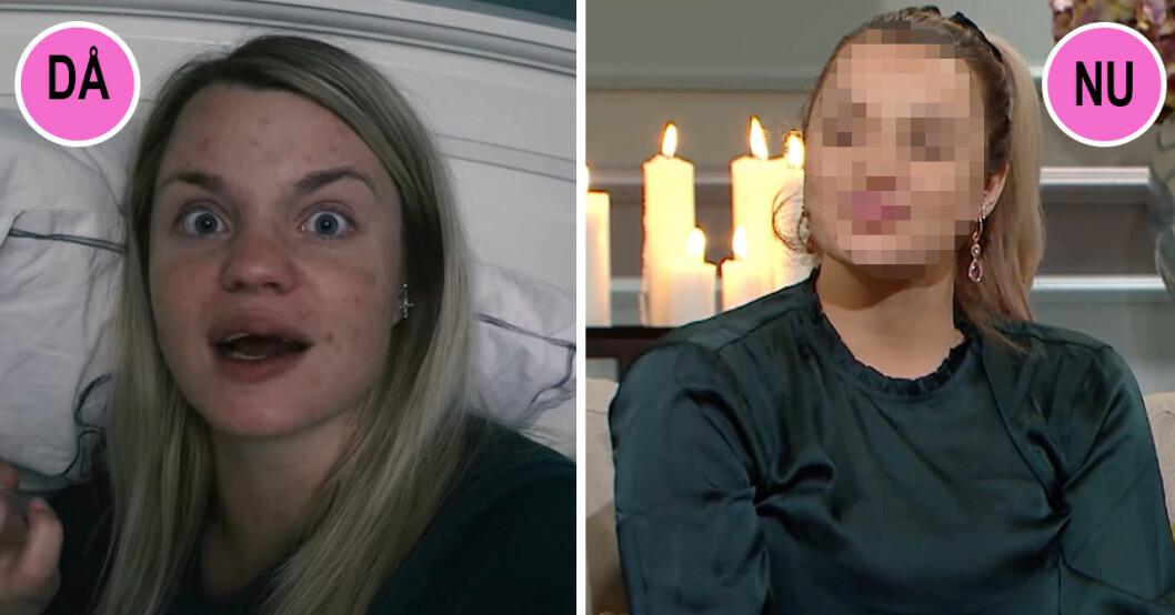 Jonna Lundell har opererat om sina läppar efter en nervskada.