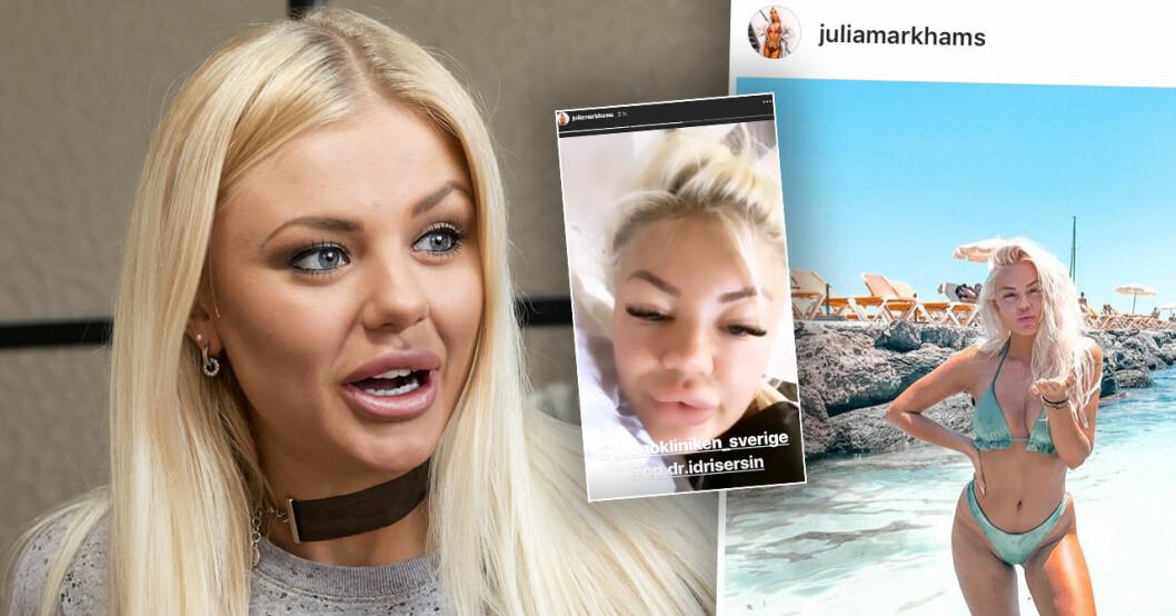 Julia Markhams skönhetsoperation efter Ex on the beach