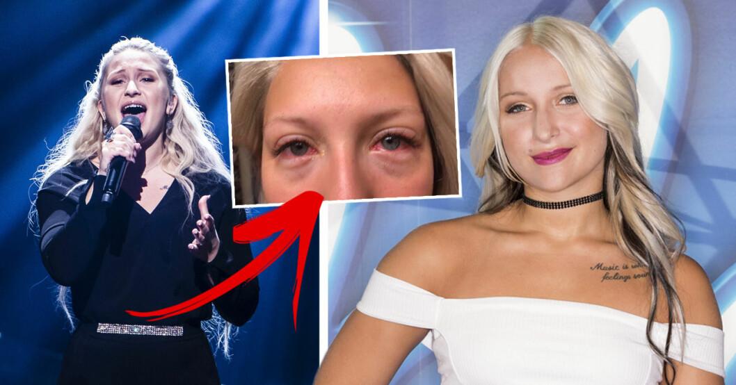 Rebecka Karlsson om misslyckade skönhetsbehandlingen som förstörde hennes ögon.