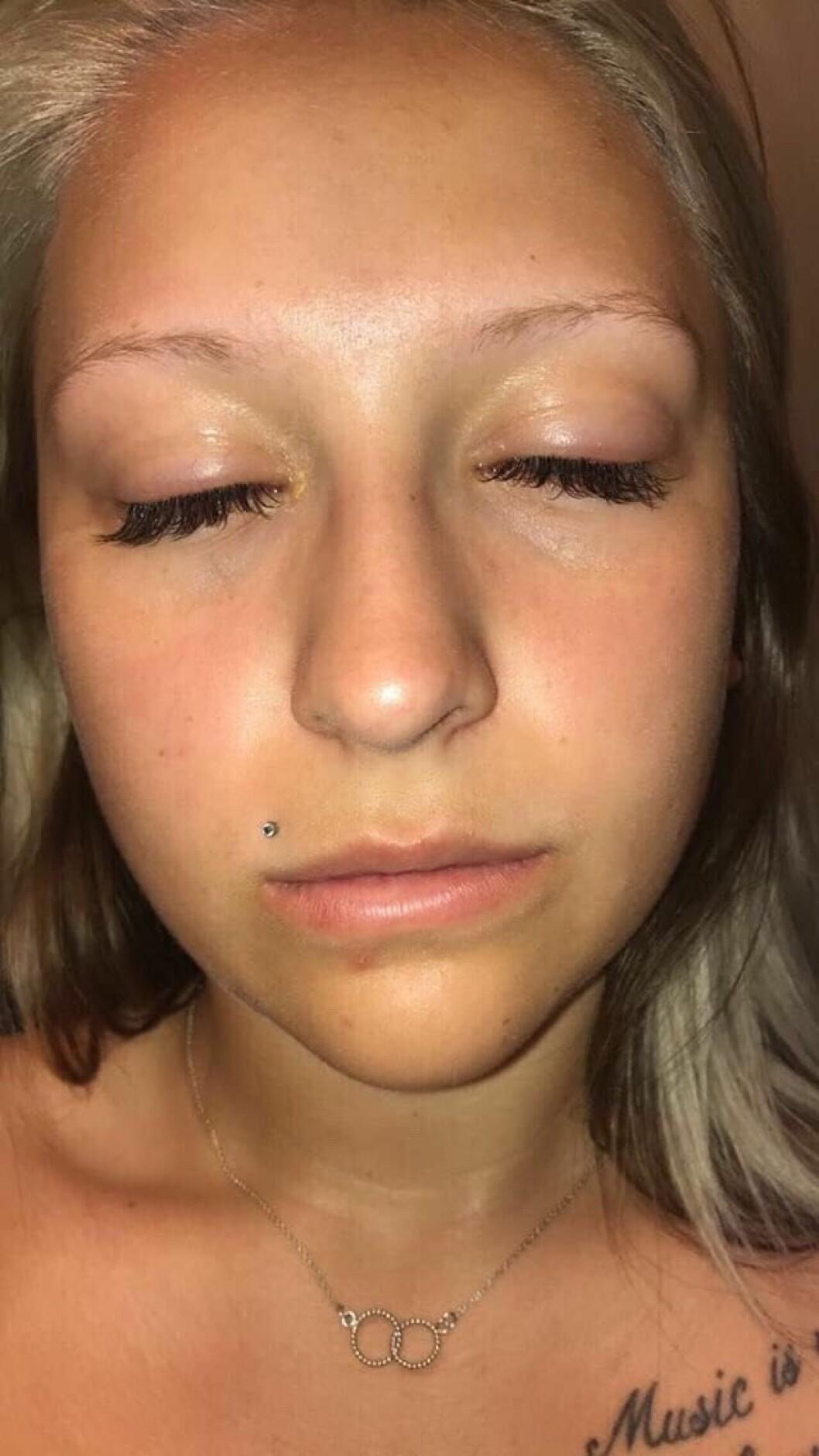 Så här såg Rebecka Karlsson ut efter misslyckade skönhetsingreppet 2017.